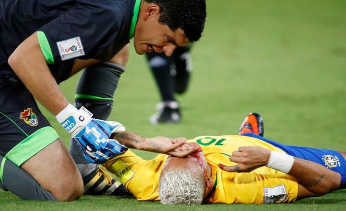 Neymar chảy máu đầy mặt vì trúng cùi chỏ của cầu thủ Bolivia