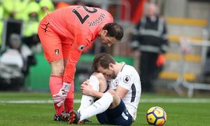 Kane dính chấn thương, tuyển Anh đau đầu trước World Cup 2018