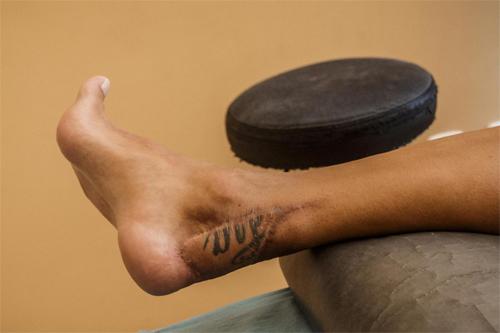 Một mảng da tay, nơi có hình xăm, của Carozla được lột ra để đắp vào phần thịt bị cắt đi ở gót chân.