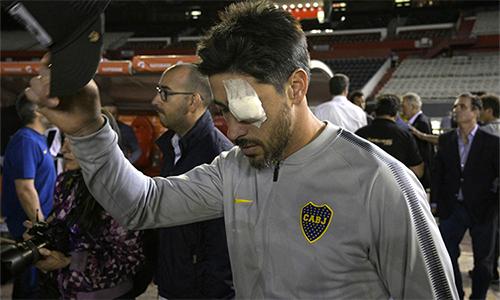 Perez bị thương vì vụ CĐV River tấn công xe bus chở anh và các đồng đội Boca.