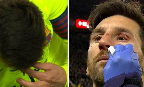 Messi sẽ nghỉ một trận La Liga.