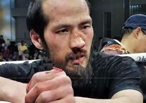Lã Cương mặt bê bết máu, mũi bị gãy sau khi thượng đài với Từ Hiểu Đông. Ảnh: Sohu.