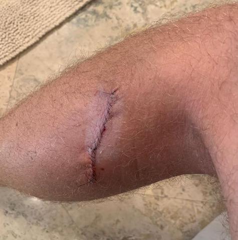 Vết mổ ở chân được Thomas chia sẻ trên Instagram. Ảnh: Instagram.