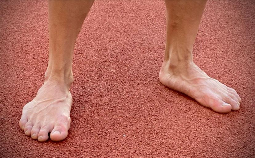 Đôi chân không bình thường của Ngần Ngọc Nghĩa. Ảnh: Kim Hòa.