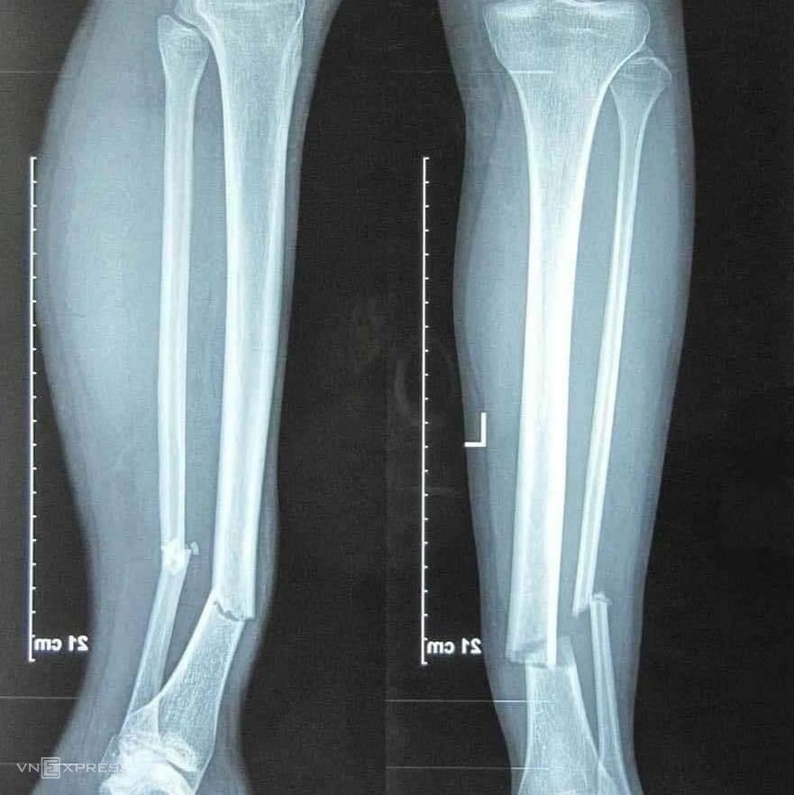 การสแกนแสดงให้เห็นถึงความรุนแรงของขาขวาของ Hung Dung