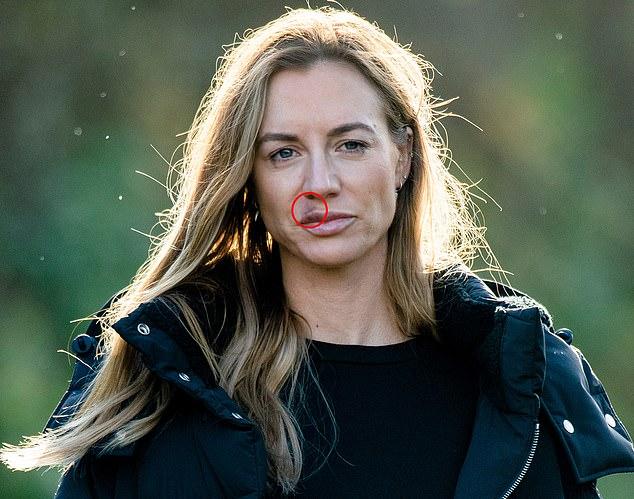 Kate xuất hiện với một bên môi sưng và bầm ít ngay sau khi bị Giggs hành hung. Ảnh: Sports Mail