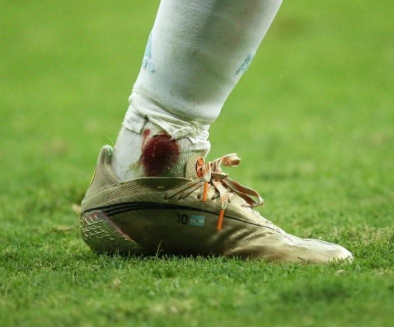 ข้อเท้าเลือดออกของเมสซี่  ภาพ: ทวิตเตอร์
