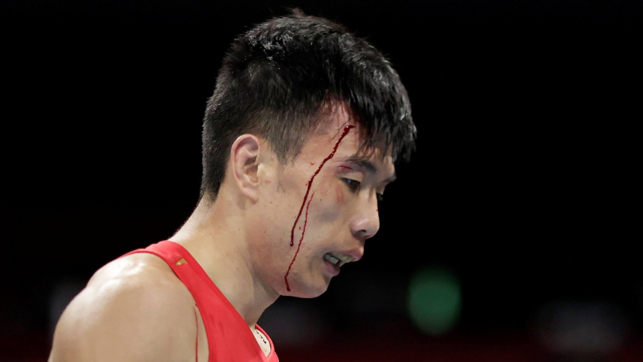 Ho Kien Quan berdarah saat bertanding melawan Ryomei Tanaka pada babak 1/8 tinju 52kg putra pada hari Minggu, 1 Agustus.  Foto: Reuters