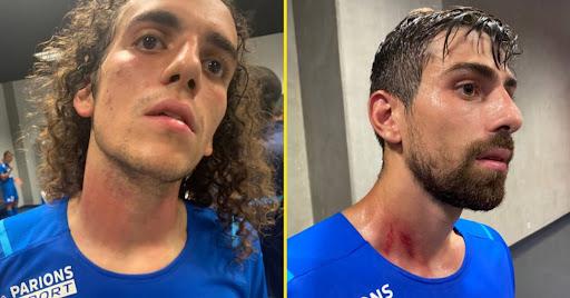 Các cầu thủ Marseille bị thương sau vụ xô xát. Ảnh: RMC