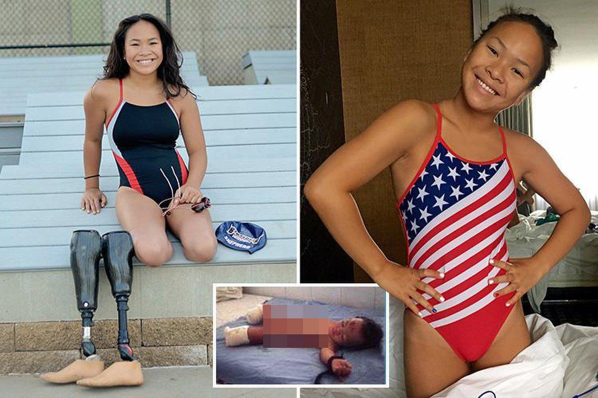 Shepherd vượt qua bi kịch cuộc đời để trở thành ngôi sao thể thao khuyết tật Mỹ. Ảnh: Marca